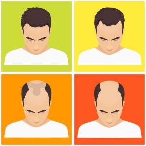 Erblich-bedingter Haarausfall Männer