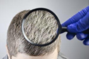 Frühzeitiger Haarausfall