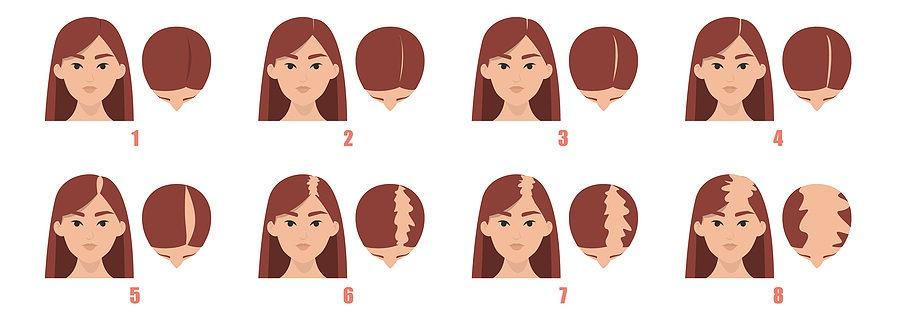 Haarschwund Frauen