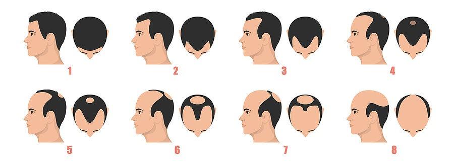 Haarschwund Männer
