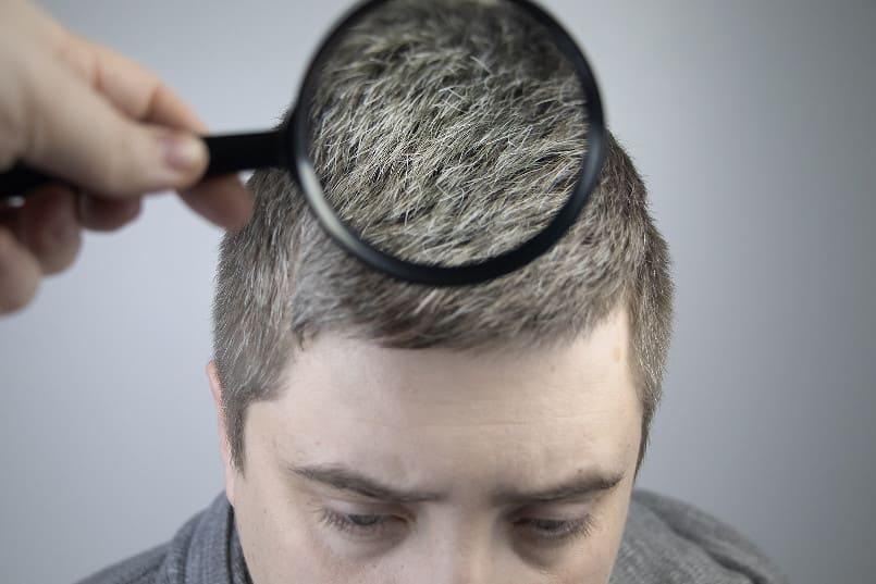 Eine Person hält eine Lupe über die grauen Haare eines Mannes