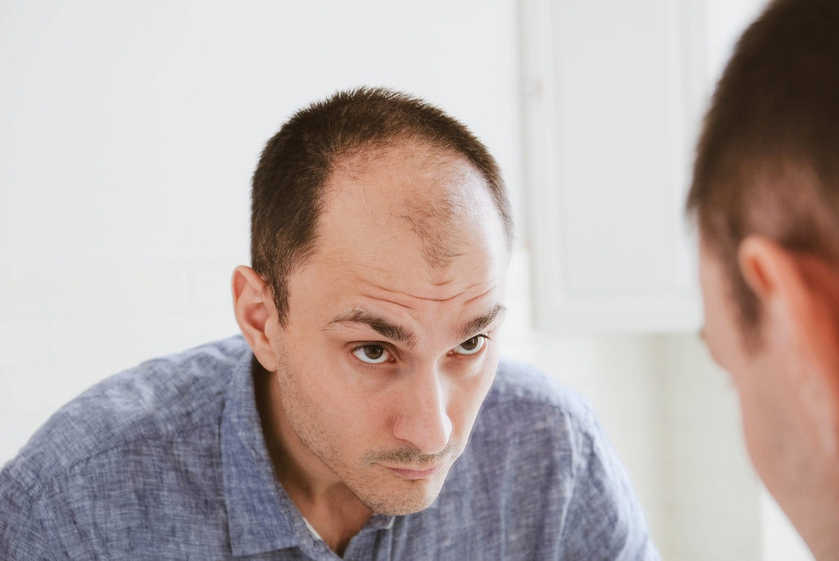 Erfahrungen mit Haarausfall