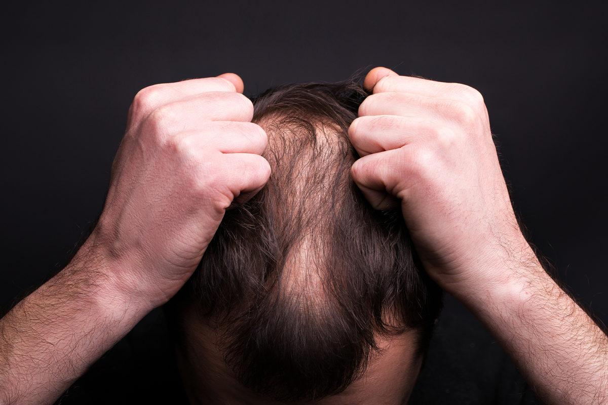 Finasterid bei Haarausfall