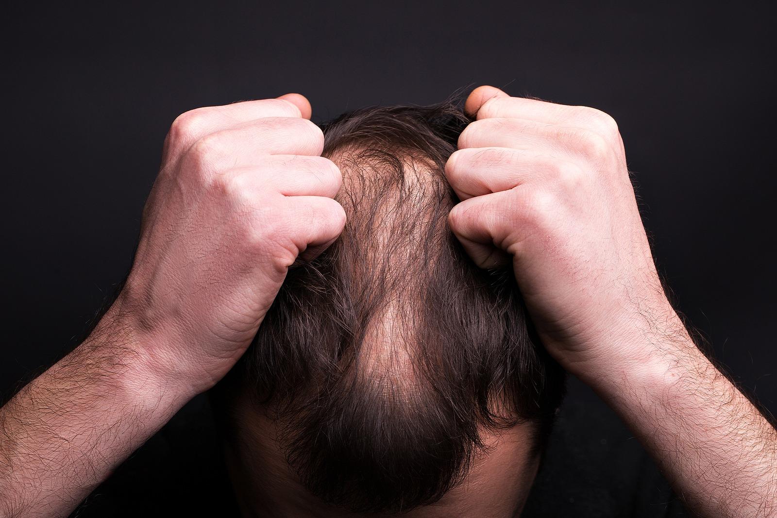 Anhaltender Haarausfall muss sofort behandelt werden