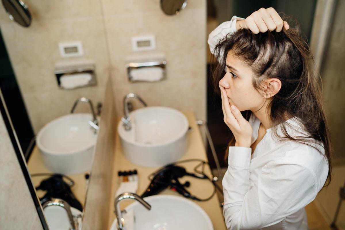 Bei Androgenetischem Haarausfall bei Frauen musst Du schnell handeln