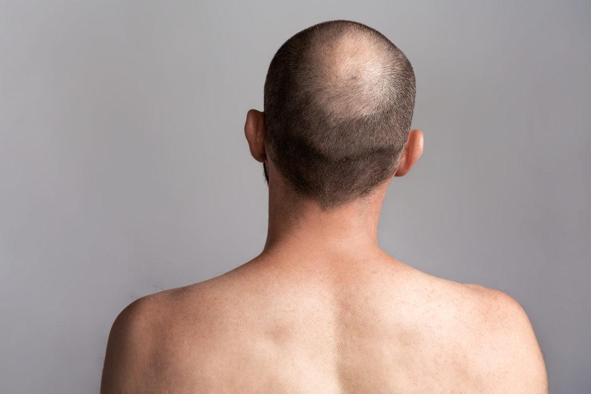 Mit der Kopfhautpigmentierung realistische Effekte erzielen