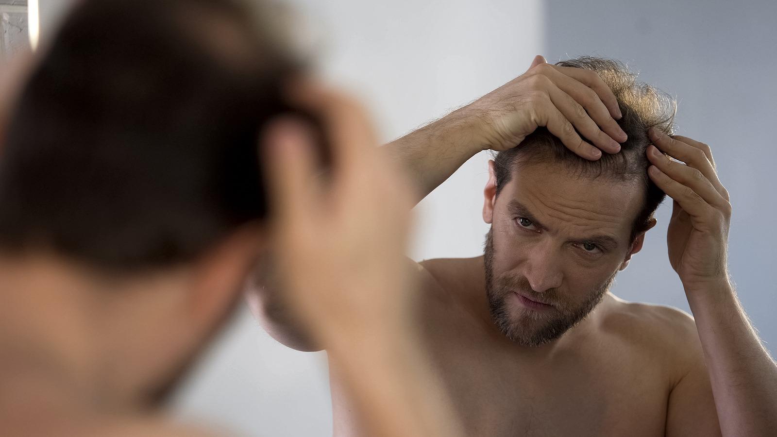 Haarausfall nach Operationen Warum tritt er auf