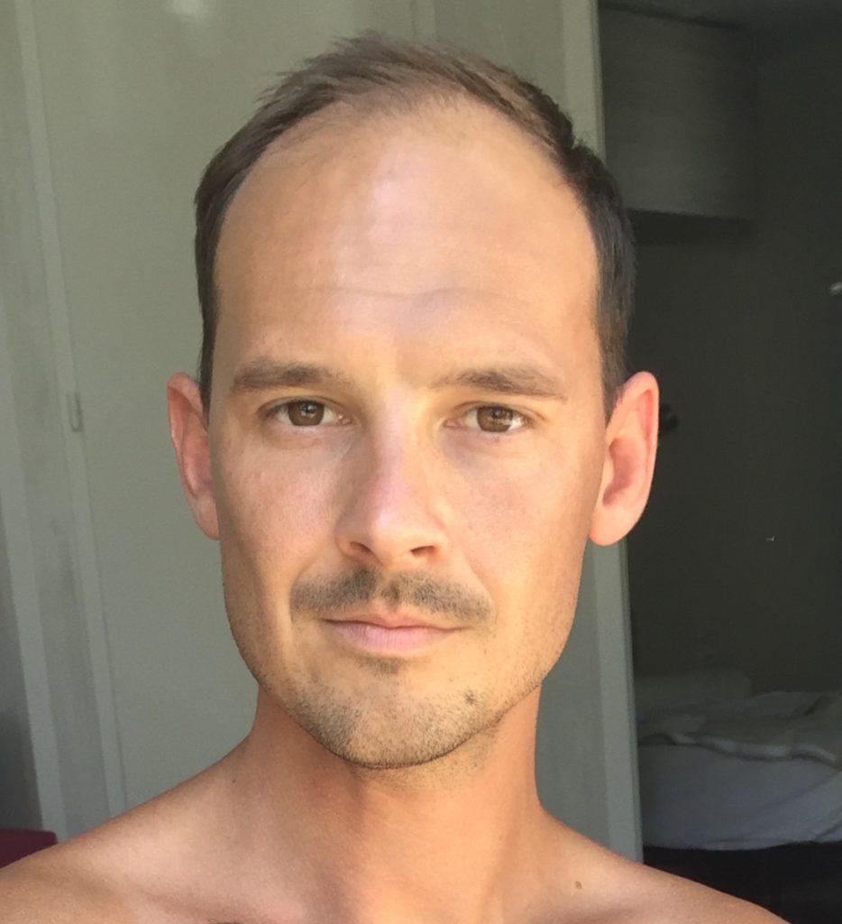 Kay zeigt seinen Haarverlust vor der Haartransplantation in der Türkei
