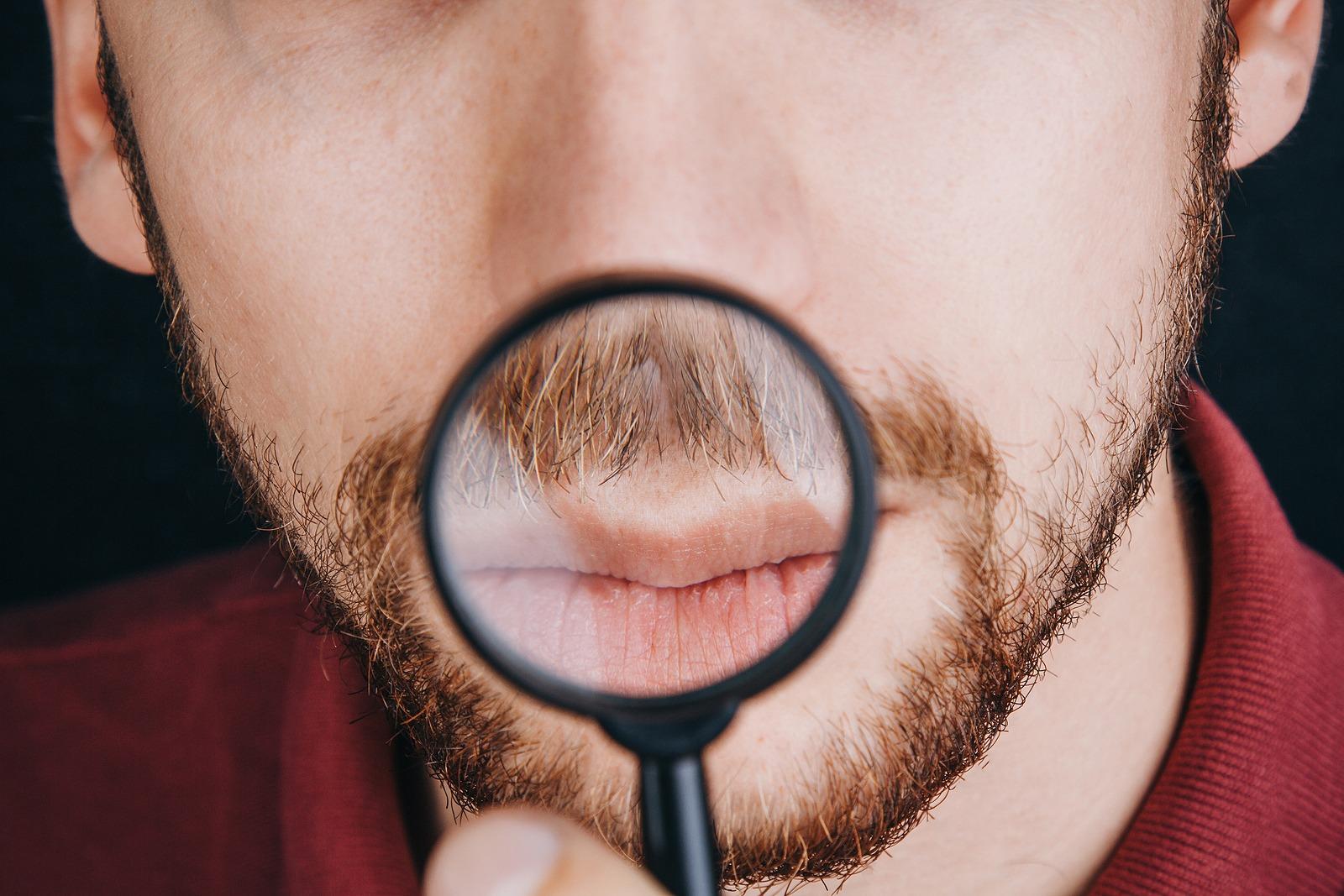 Kreisrunden Haarausfall am Bart