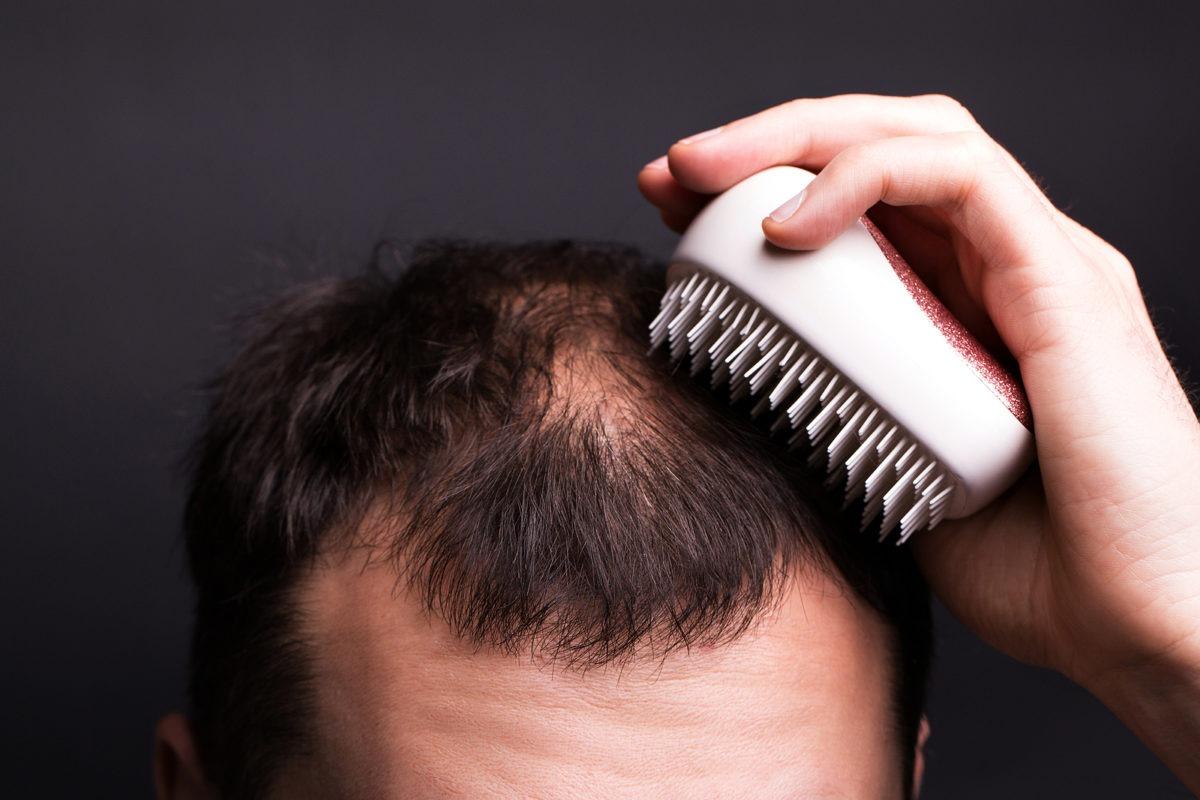 Großflächiger Haarausfall