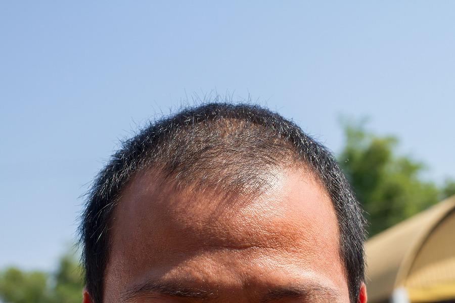 Haarausfall und Haarveränderungen rechtzeitig behandeln