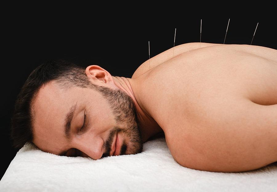 Akupunktur bei Haarausfall