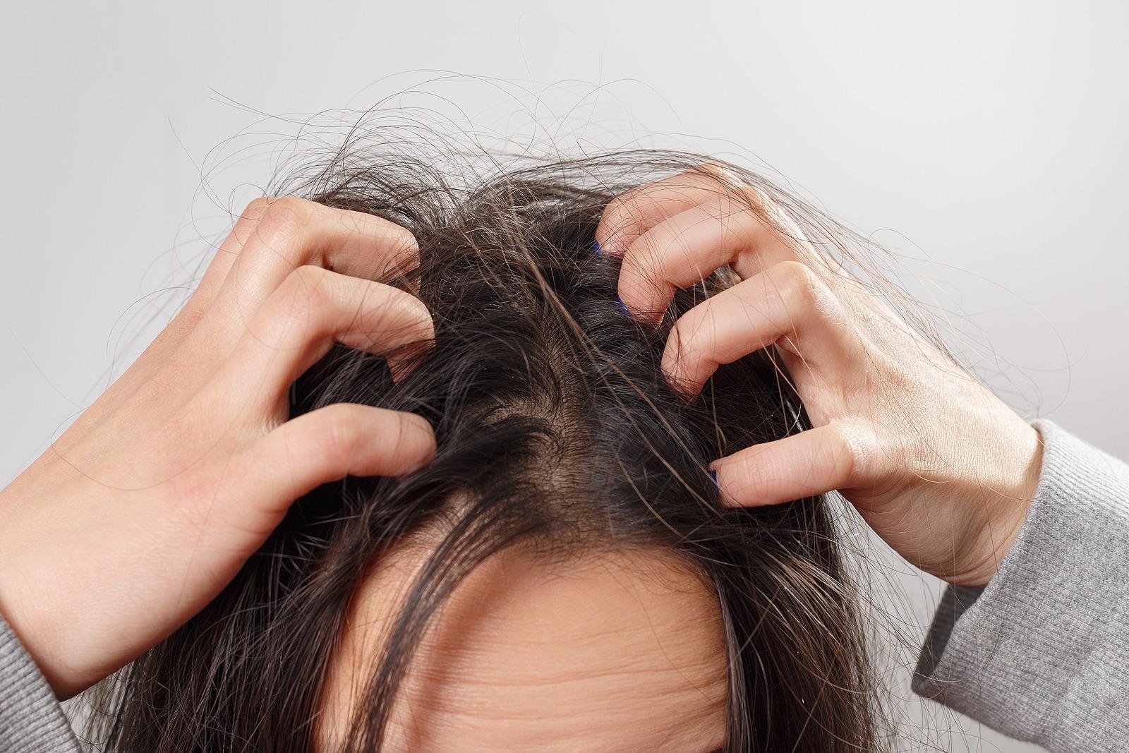 Haarausfall durch trockene Kopfhaut Was ist daran wahr