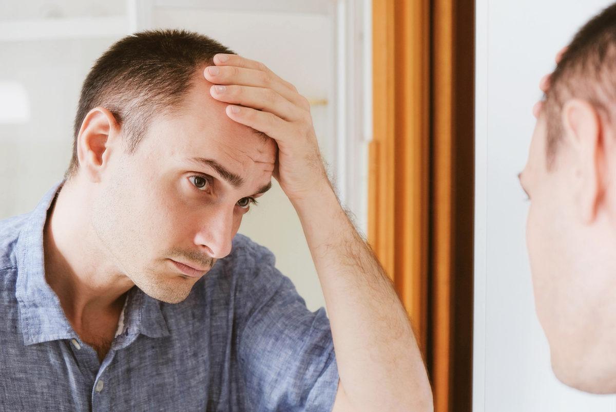 Haartransplantation mit 20 Sorgfältig zu überlegen