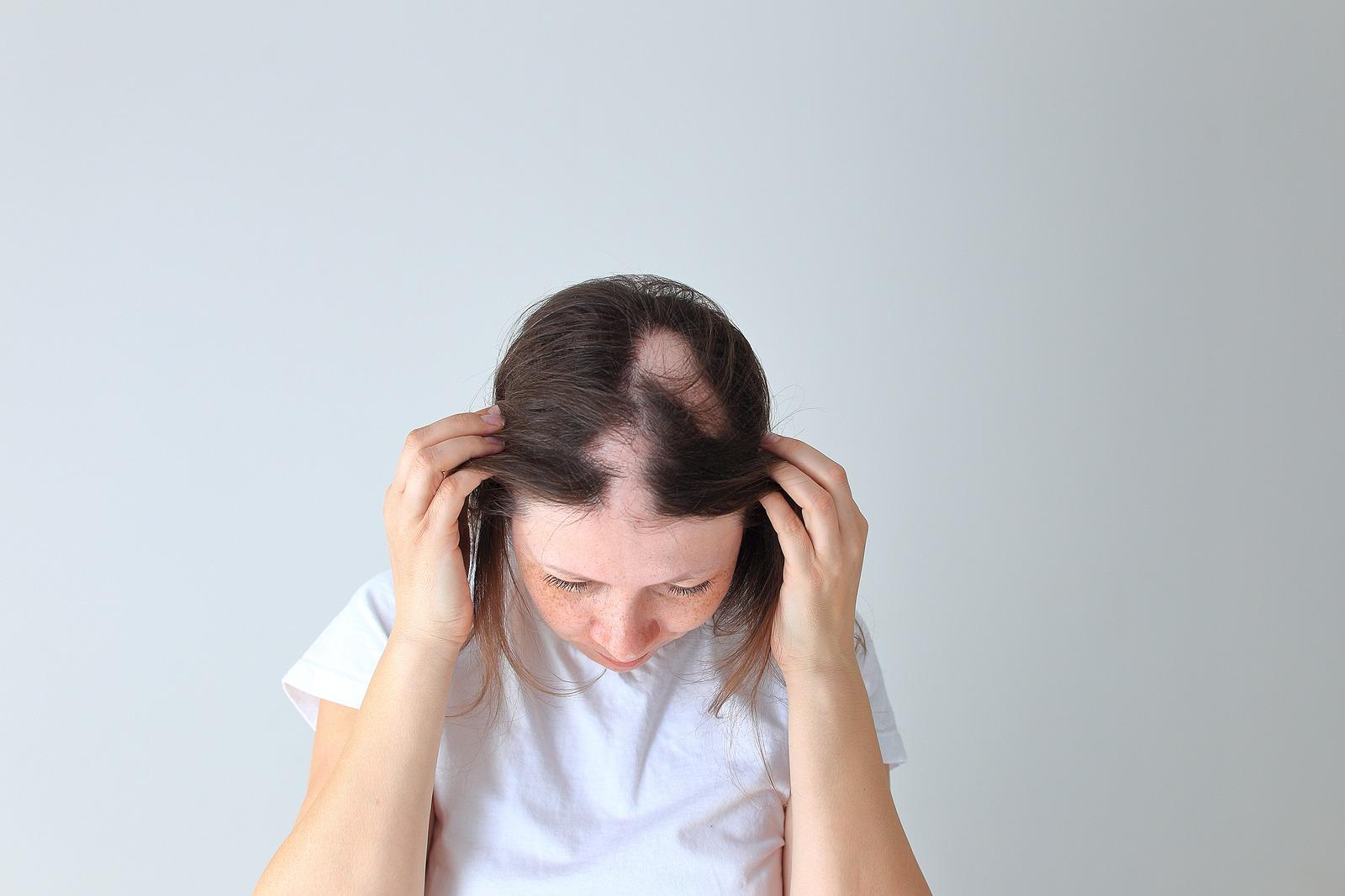 Stellenweise Haarausfall
